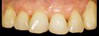 Gummy smile: Mikrochirurgische Harmonisierung des Zahnfleisch-verlaufs und Versorgung mit Vollkeramik-Teilkronen vorher