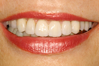 Gummy smile: Mikrochirurgische Harmonisierung des Zahnfleisch-verlaufs und Versorgung mit Vollkeramik-Teilkronen nachher